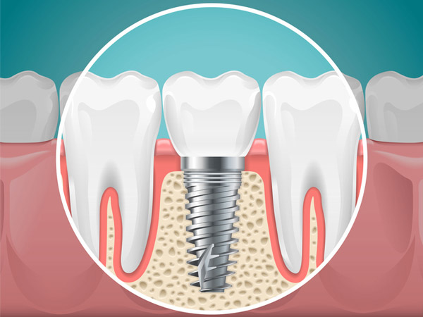 Diagram of a tooth replaced with a dental implant at Malmquist Oral and Maxillofacial Surgery in Portland, OR