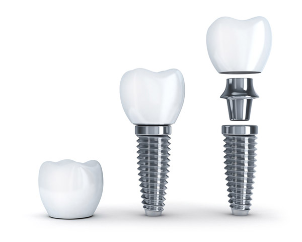 Diagram of dental implant with post at Malmquist Oral and Maxillofacial Surgery in Portland, OR
